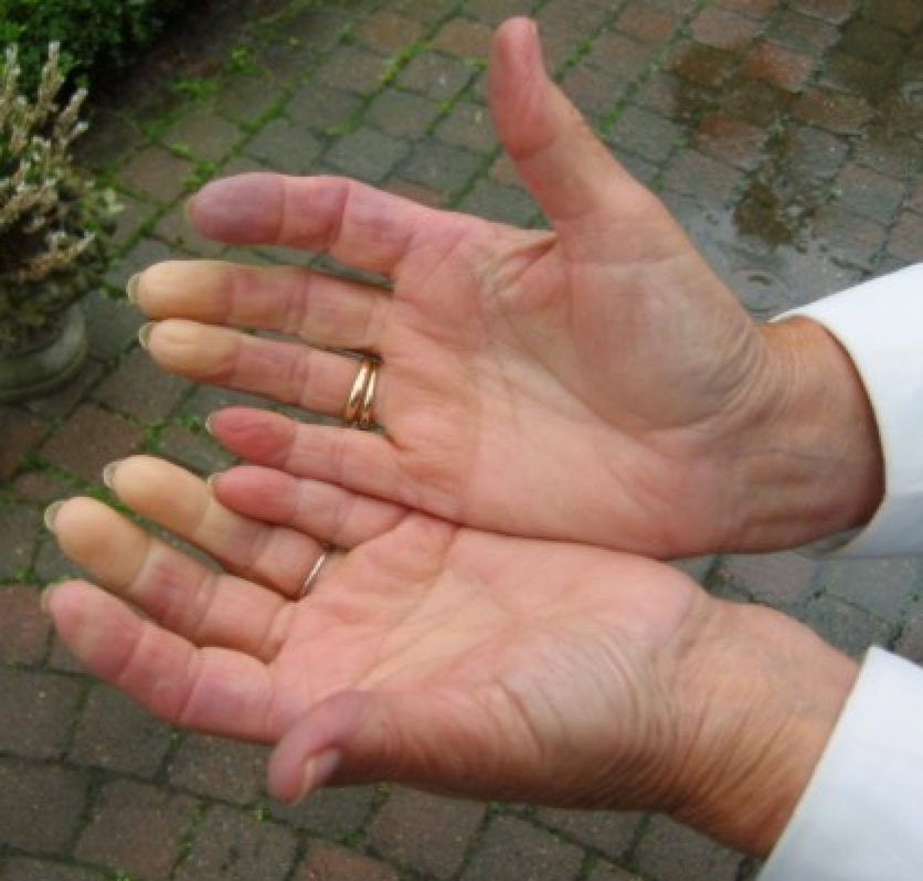 Denervation supersensitivity leads to Raynaud's Disease