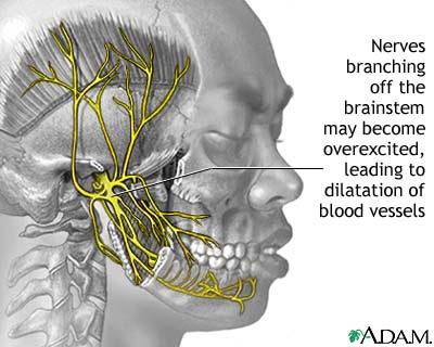 Faulty gene causes migraine