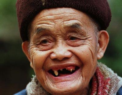 Awas Stres Dapat Membuat Gigi Anda Cepat Ompong