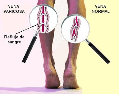diferencias entre una vena normal y una vena varicosa