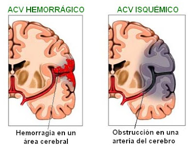 diferencias entre un accidente cerebrovascular hemorrágico y uno isquémico