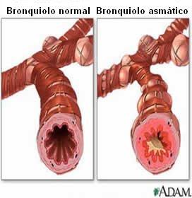 diferencias entre un bronquiolo normal y uno asmático