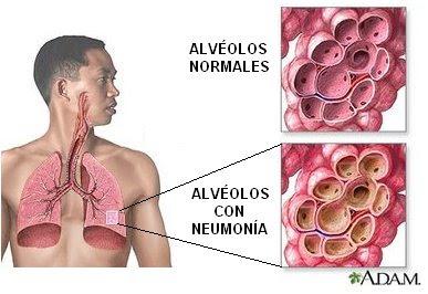 alveolos normales y alveolos con neumonía