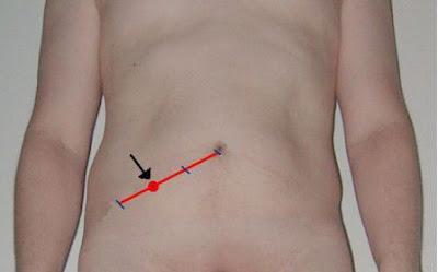 El punto de Mc Burney, muy sensible a la presión en casos de apendicitis, se ubica entre el tercio externo y el tercio medio de una línea que va desde el ombligo hasta la espina ilíaca antero-superior (flecha).