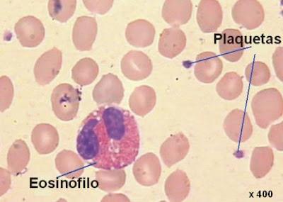 plaquetas y un eosinófilo rodeado de eritrocitos
