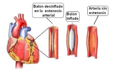 Angioplastia con balón