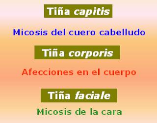 Las tiñas se clasifican de acuerdo a la región corporal afectada.