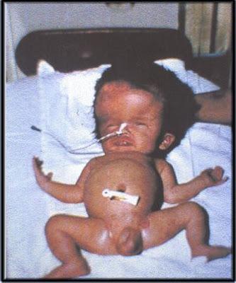 fotografía de un bebé recién nacido afectado de Toxoplasmosis. Nótese la macrocefalia (aumento del tamaño de la cabeza) y la distensión abdominal, producto del gran aumento de tamaño en el hígado (hepatomegalia) y el bazo (esplenomegalia).
