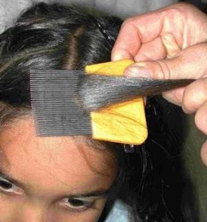Eliminación de liendres con peines especiales