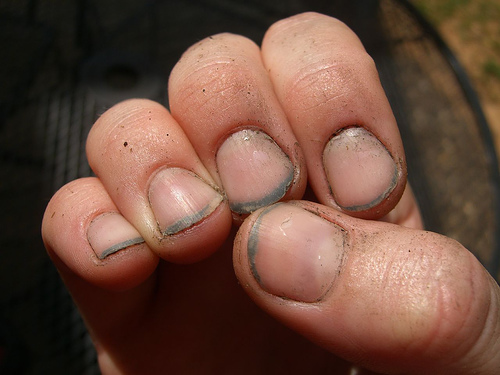 Dirty Finger Nails Are Not Only A Distraction But They Genuinely Make Me Wonder About Person I Understand If You Do Work Or Have One Of Those Jobs