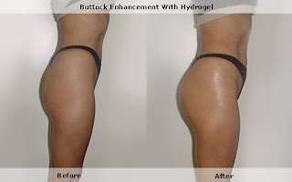Buttock Injections, why they are very risky