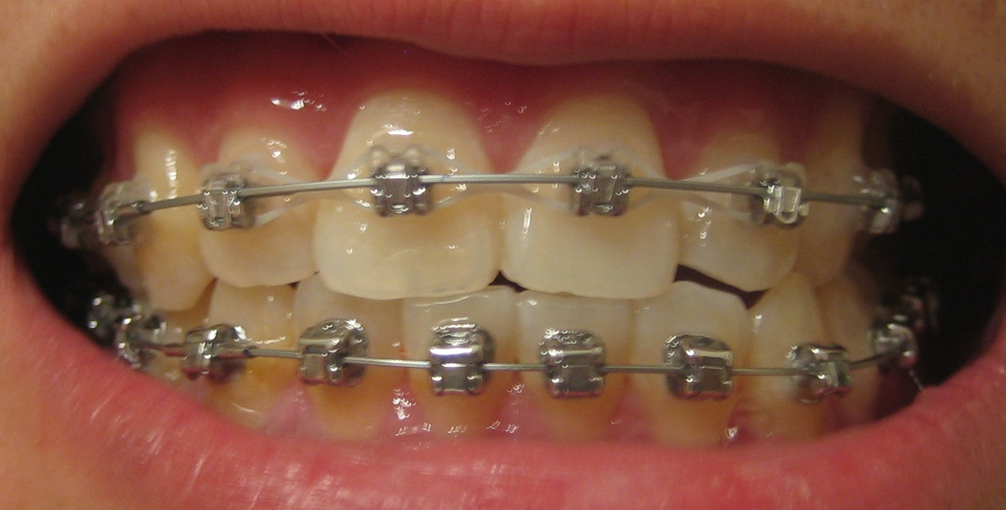 My Journey with the Damon Braces: Week 33: Ortho Follow up & New ...