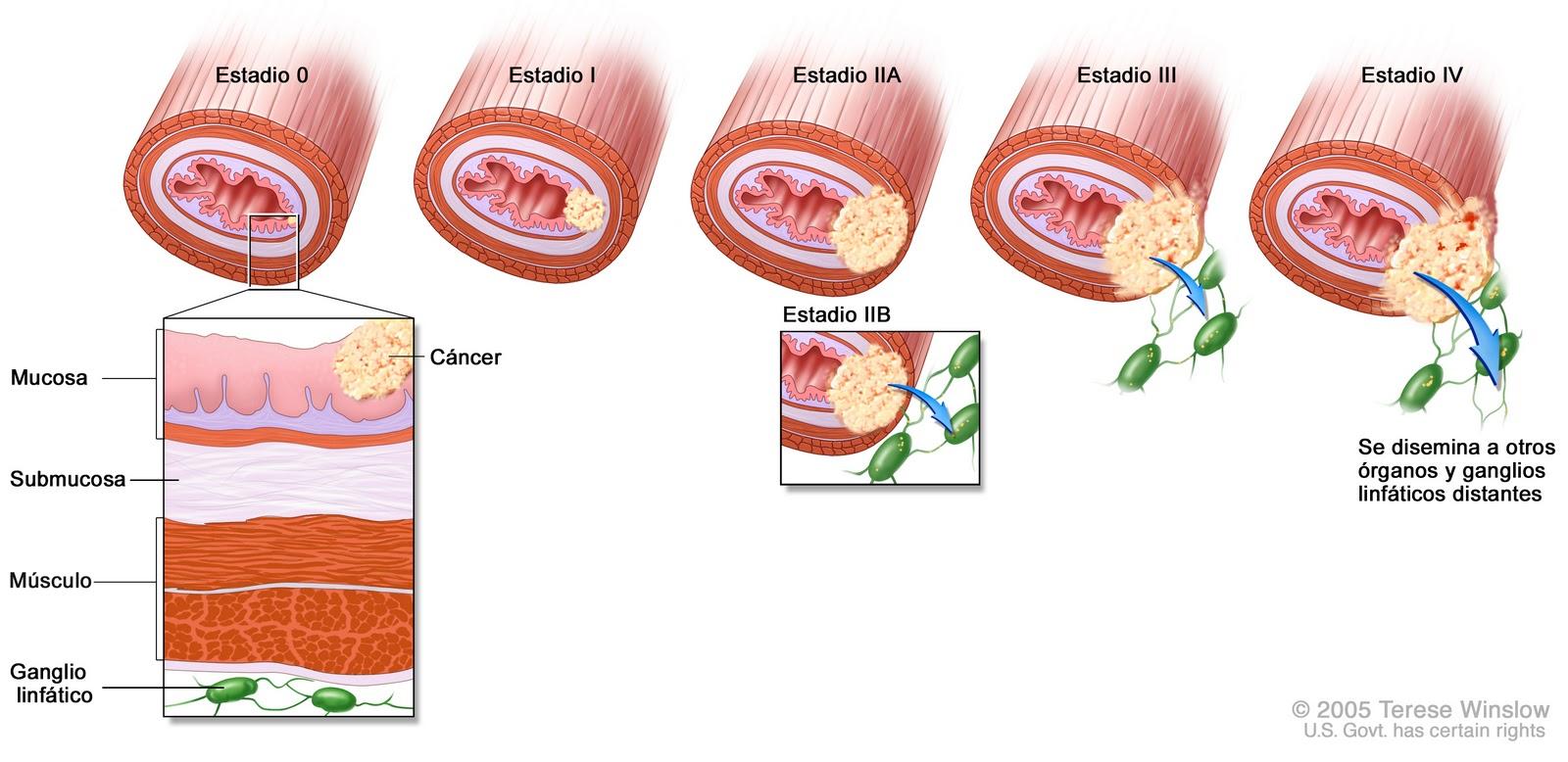 Стадии рак печени 7 фотография