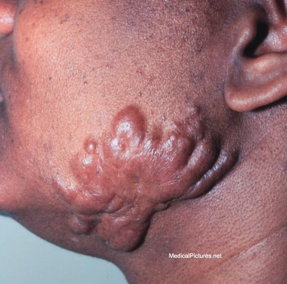 Keloid scar pictures