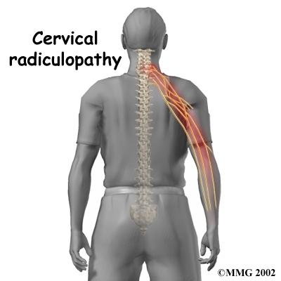 radiculite cervicale