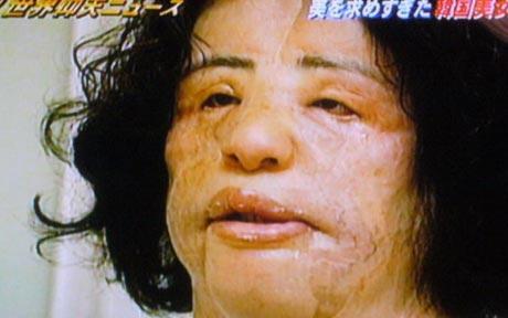 heidi montag surgery scars. heidi montag plastic surgery
