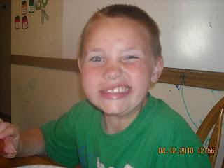 Prolonged Facial Numbness After Dental Work - Dental