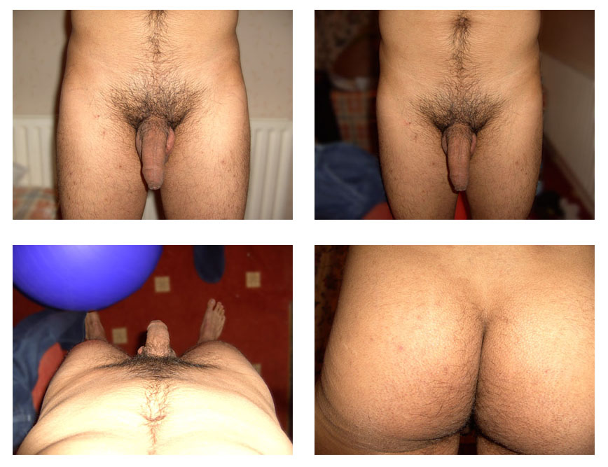 This article is about Brazilian wax photos before and after,