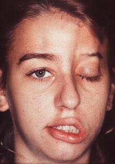 Fotos de pessoas com paralisia facial