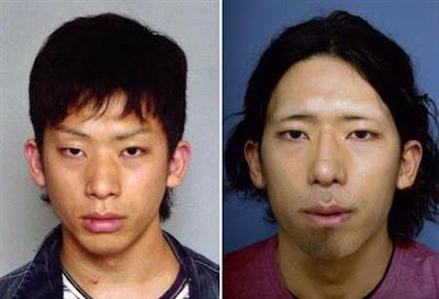 Tatsuya Ichihashi plastic surgery