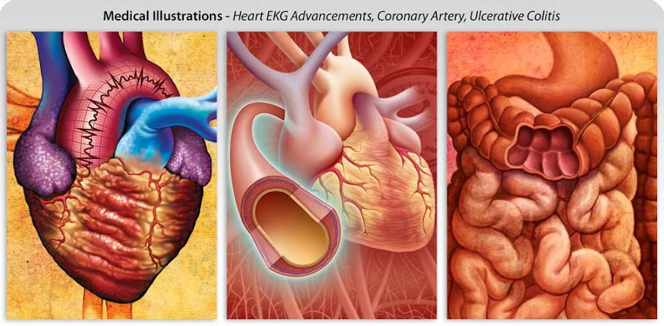 Dr Harry Elwardt Believes DPA Tests ~ Analysis Tool for Early Detection of Heart Disease