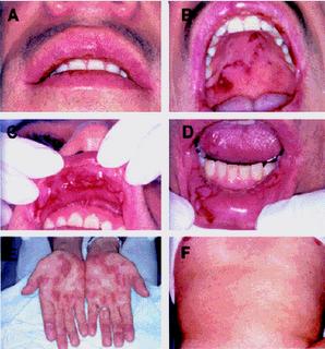 Irritacion en los labios genitales
