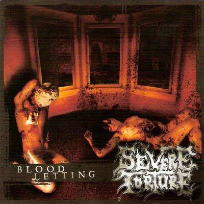 http://4.bp.blogspot.com/_Ualhp1Z_dwI/StJfV4oMgMI/AAAAAAAAAVU/C_AGFDKOs8o/s400/Severe+Torture+-+Blood+Letting.jpg