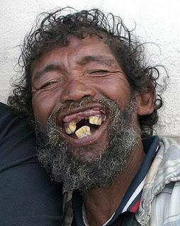 hombre negro dientes feos humor