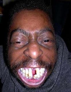 hombre negro muy feo dientes humor