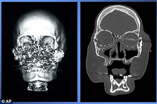 connie culp x rays after being shot in the face by her husband