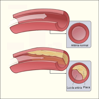 Operação em redução de um peito Ufa