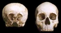 مقارنة بين جمجمة الإنسان (في اليمين) وجمجمة ستارتشايلد الغامضة (في اليسار)