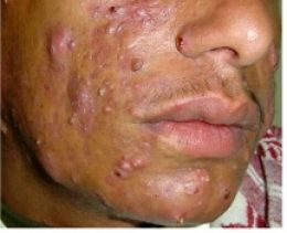 Mederma Cures Cystic Acne Scars | ACNE Scars TREATMENT ...  Severe