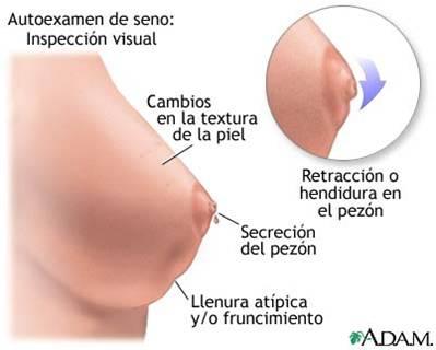 Si el sexo afecta el crecimiento de las mamas