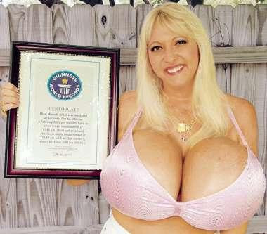 Triple d breast implants