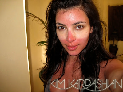kim+kardashian+sunburn The Product That Saved Kim Kardashians Sunburned Skin
