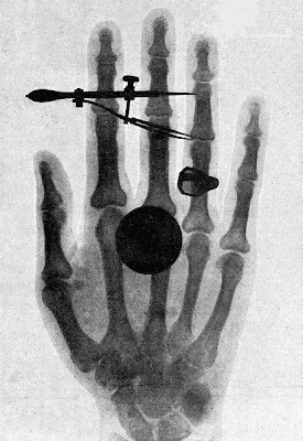 Anna Bertha's hand by Willhem Conrad Roentgen