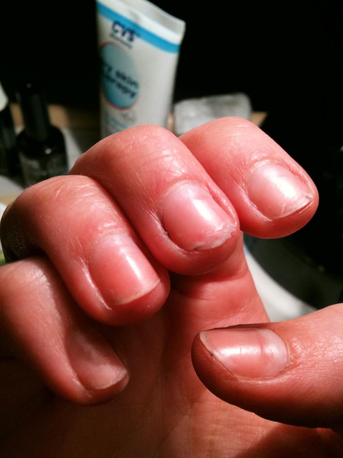 Shynk!: Nail damage :(