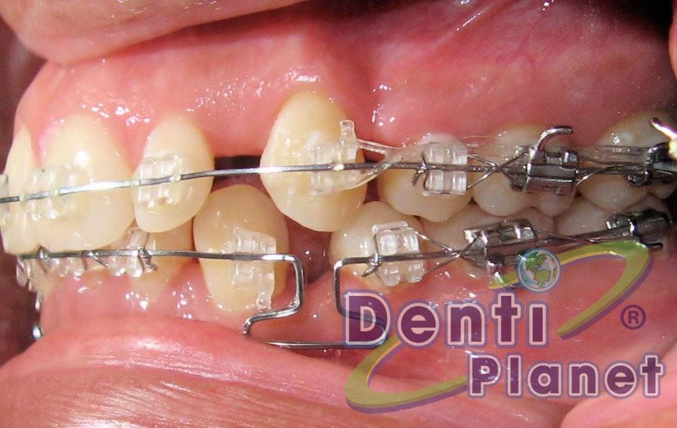 Blog ortodoncia dentiplanet c mo se cierran los espacios for W de porter ortodoncia