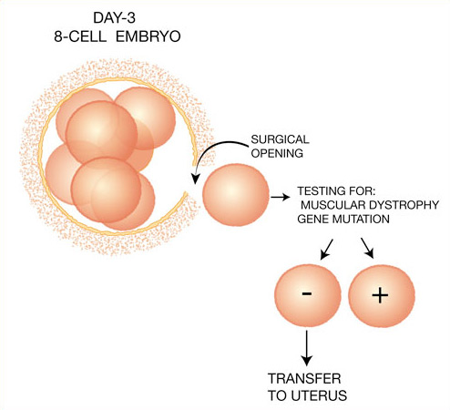 the controversy of preimplantation genetic diagnosis and its effect on social morality Pre-implantation genetic diagnosis (or pgd) is a procedure used with in-vitro fertilization and screens embryos for genetic disorders 1 1 in pgd, a single cell from a 3-day old embryo is removed, fertilized in vitro, and then analyzed for genetic abnormalities.