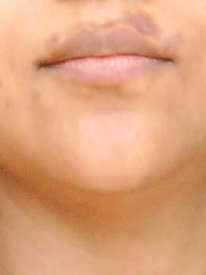 herpes simplex. herpes simplex mouth. with