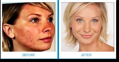Acne-Pimples-blackheads-Acne scars