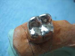 incrustacion en plata paladio