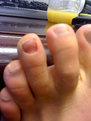 Does this (notice the missing toenail) mean I can officially call myself an