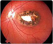 cicatriz toxoplasmose