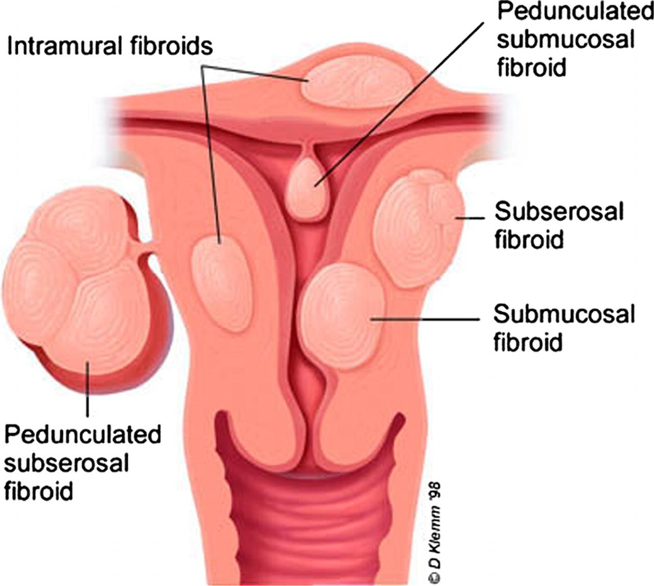 Реферат опухоли матки 12 фотография