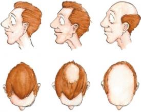 El tratamiento de los cabellos ralos