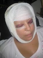Fotos de nancy alvarez despues dela cirugia 54