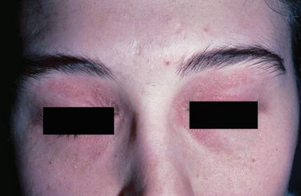 Eyelid redness, Itching or burning, Scaley skin on eyelids ...