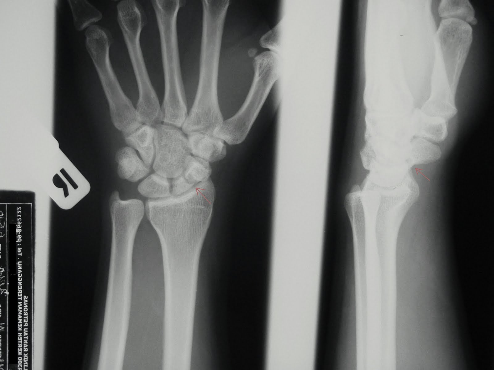 Fracture of scaphoid waist